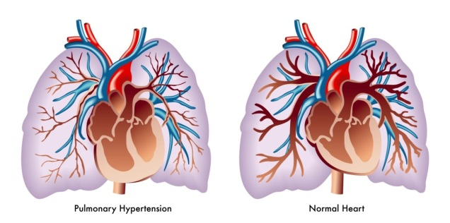 pulmonary_hypertension.jpg
